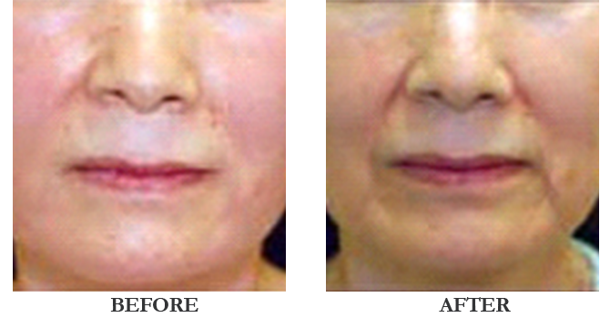 Jet Peel Hydra Skin Rejuvenation London Mesotherapy Center